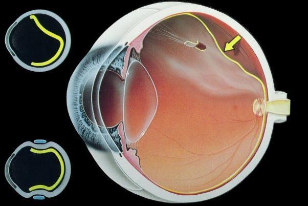 Жданов полный курс упражнений для восстановления зрения жданова