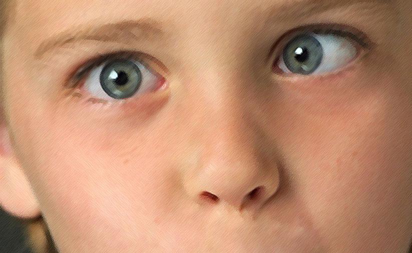 Как лечить косоглазие у детей в домашних условиях