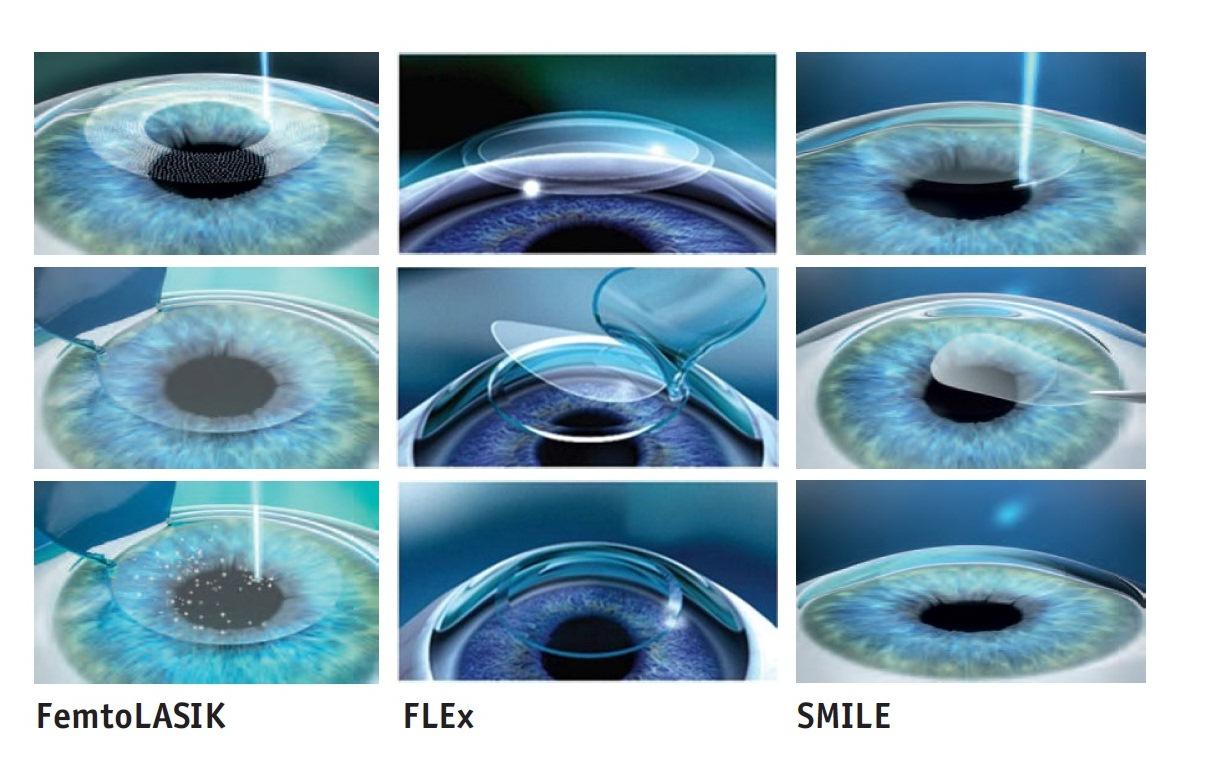 Глаза нарушение зрения